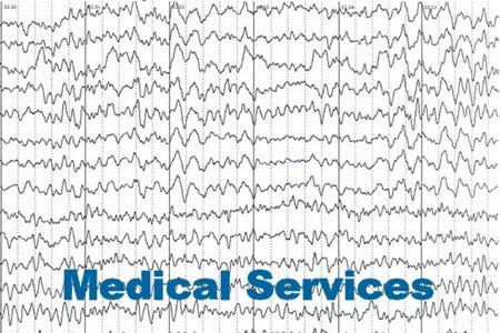 Диагностика и лечение эпилепсии в Германии.