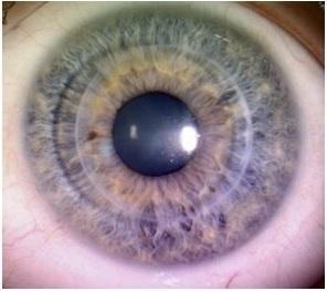 Лечение решетчатой дистрофии роговицы глаза в Мюнхене