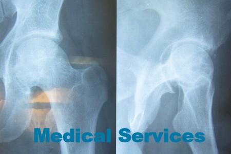 Лечение остеоартроза тазобедренного сустава в Германии.