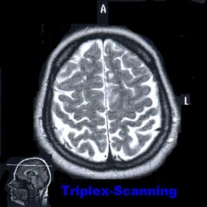 Триплексное сканирование магистралных артерии головы экстракраниальном уровне в Германии